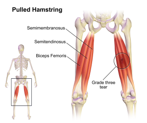Pulled_Hamstring_2016070909220177f.png