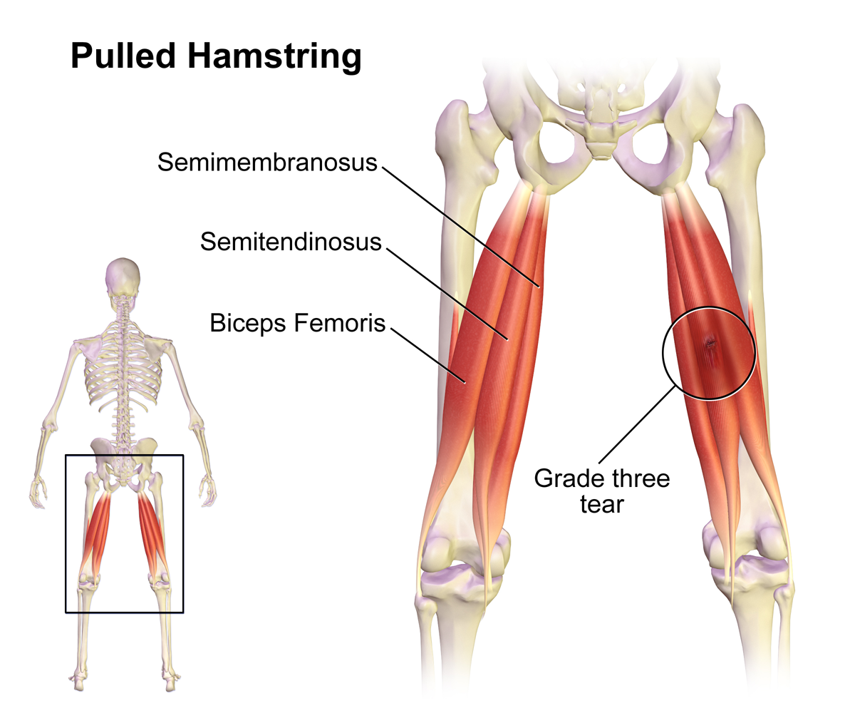 Pulled_Hamstring_20160712202729a54.png