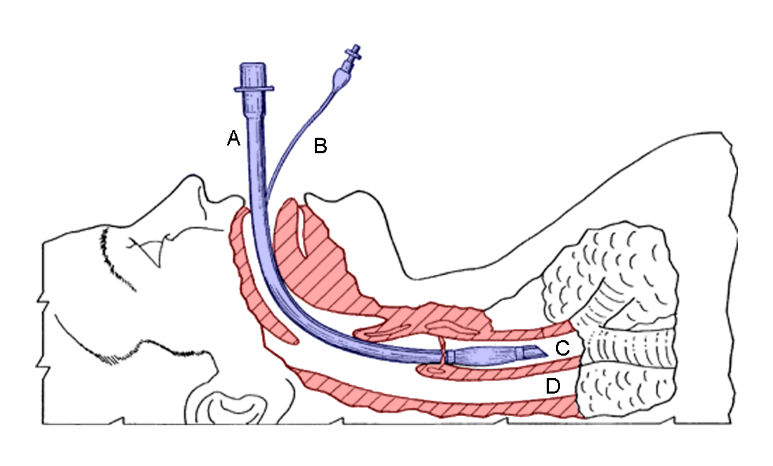 Endotracheal_tube_colored.png