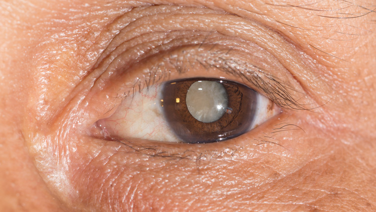 cataracts_053.jpg