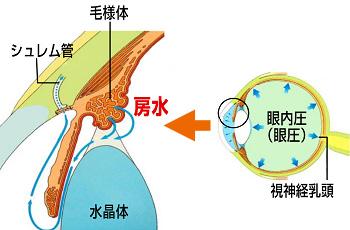 glaucoma_001.jpg