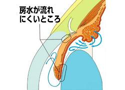 glaucoma_009.jpg