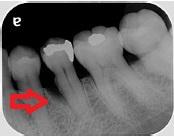 初診下顎左側初診1