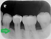 下顎左側5・6・7番術後1年1
