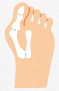 変形性股関節症の足