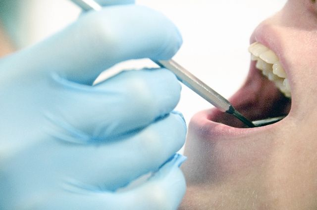 【防災】「首都直下地震」を想定し、歯科医師や警察鑑識官が訓練…歯の治療痕から身元確認を