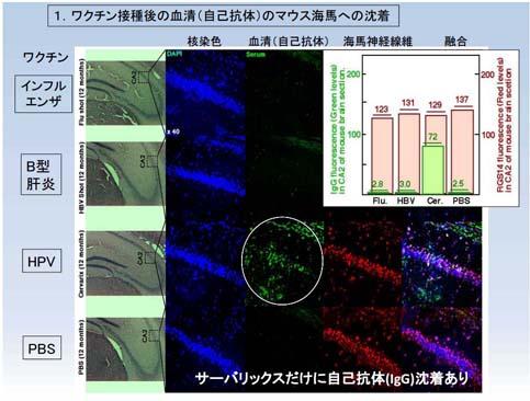 池田資料201603脳抗体1s