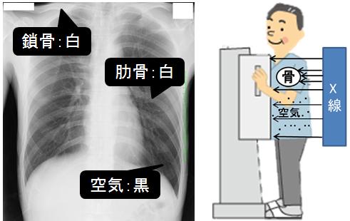 X線のとり方