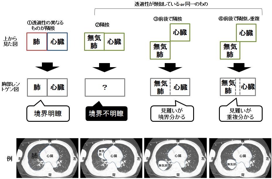 シルエットサイン X線画像のイメージ図