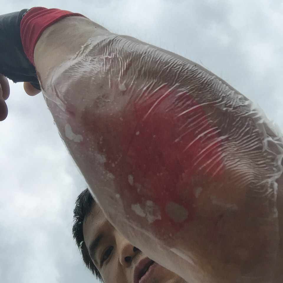 前腕の怪我