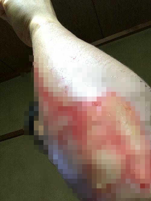 怪我のあとモザイク160706