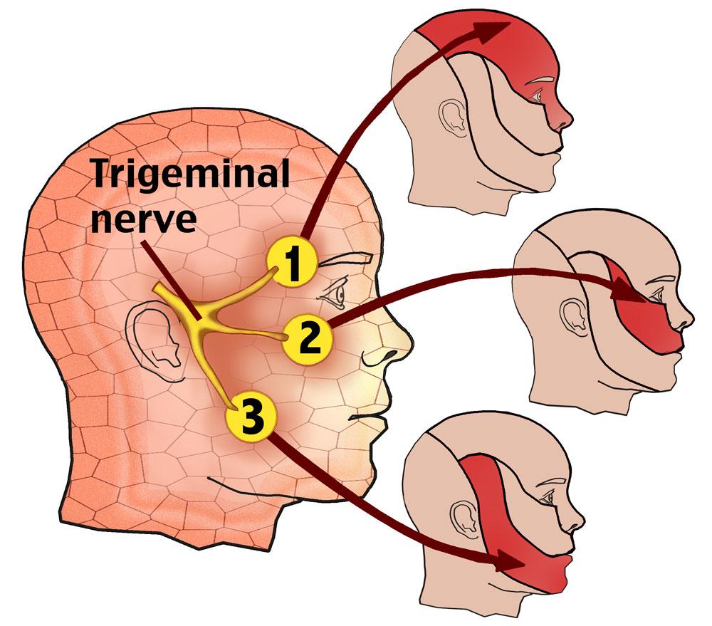 Trigeminal-Neuralgia.jpg