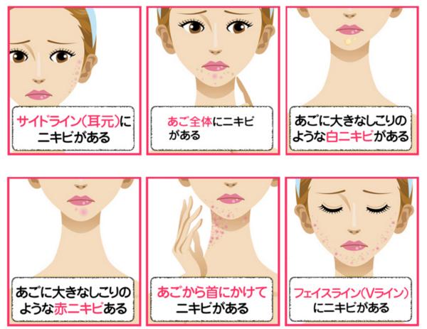 あご・フェイスラインのニキビに!潤い成分たっぷりジェル【メルライン】10種類もの保湿成分があなたのお肌の潤いを守り、プルプルお肌へ♡